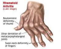 osteoarthritis-vs-rheumatoid-arthritissd